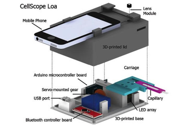 CellScope_Loa_1